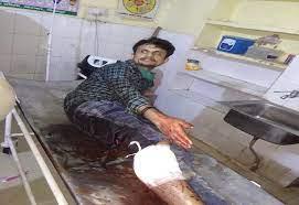 पुलिस मुठभेड़ में दबोचा गया हिस्ट्रीशीटर प्रिंस, पैर में लगी गोली